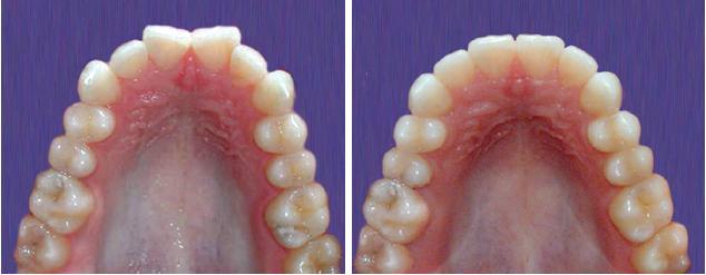Felső fogsor fogszabályozás előtt - után